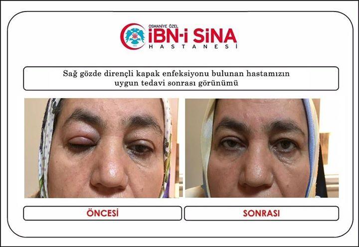 Sağ gözde dirençli kapak enfeksiyonu bulunan hastamızın